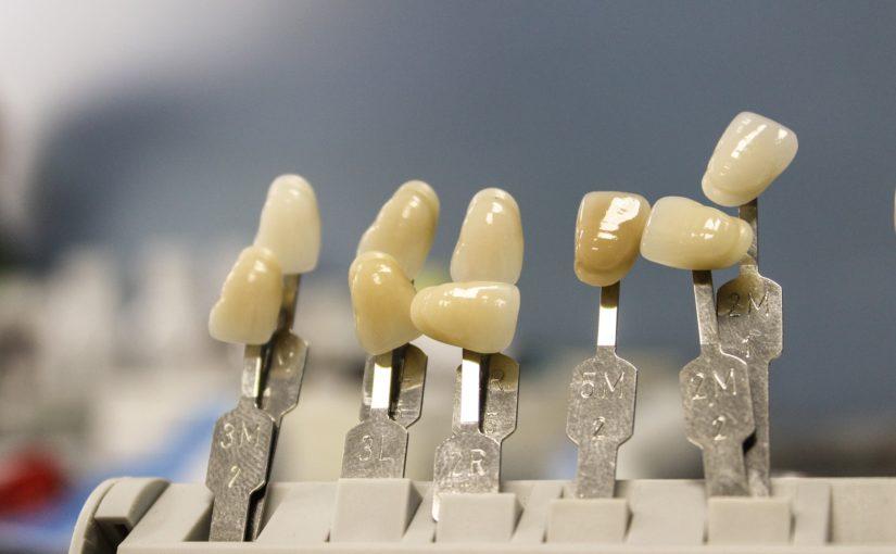 Piękne nienaganne zęby także godny podziwu uroczy uśmieszek to powód do płenego uśmiechu.